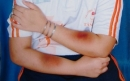 Giáo viên đánh học sinh bầm tím hai tay