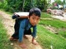 Khâm phục những học trò khuyết tật bò lết đến trường